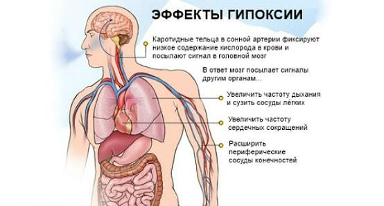 гипоксия