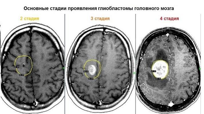 Стадии опухоли головного мозга