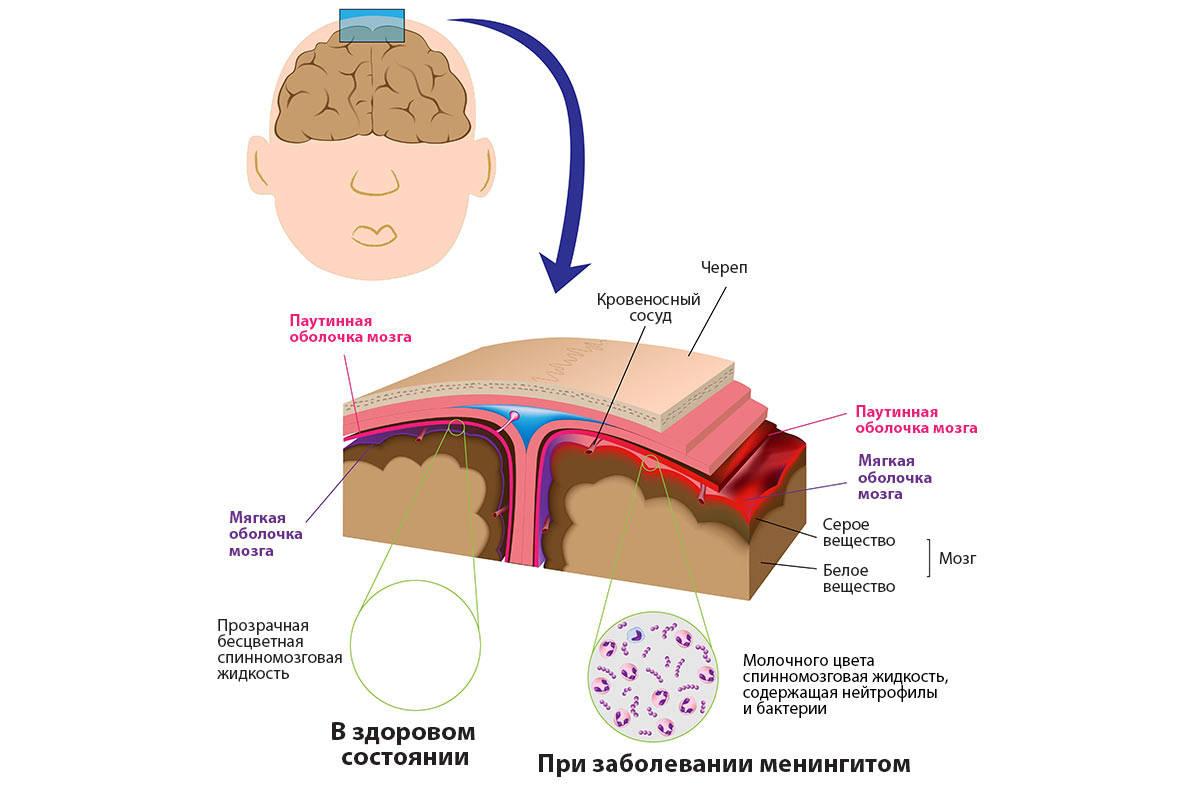 воспаление головного мозга - схема