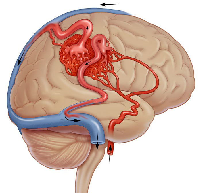 1441358867 malformaciya - Васкуларни малформации на видови на мозоци симптоми третман дијагноза