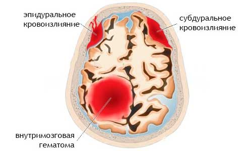виды гематом головы