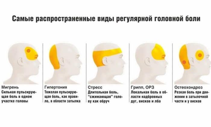виды и характер головной боли
