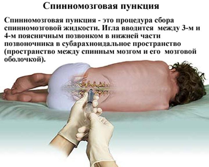 анализ спинномозговой жидкости