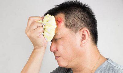 Гематома после травмы головы