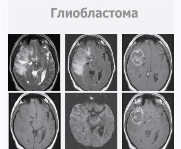 Прогнозы жизни при диагнозе глиобластома мозга