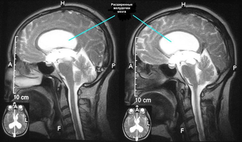 расширенные желудочки головного мозга