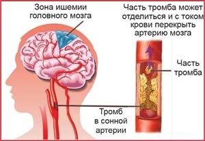 ишемия