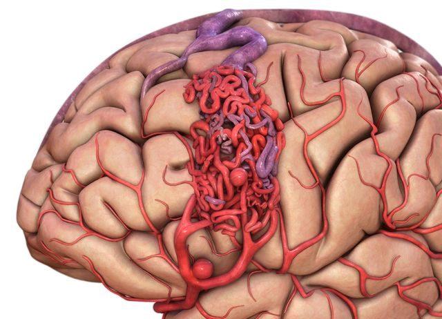гемангиома на поверхности мозга