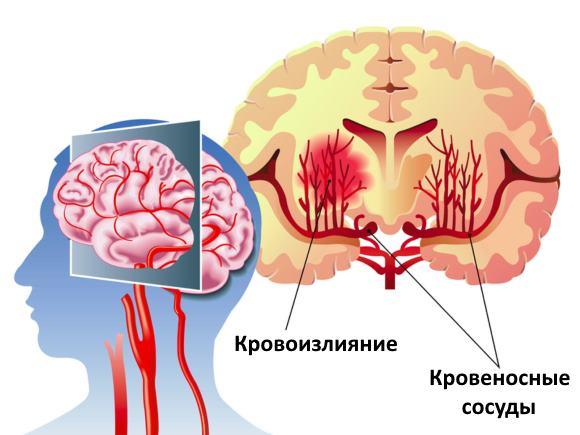 кровоизлияния в головной мозг