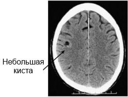 псевдокиста головного мозга у новорожденного на рентгене