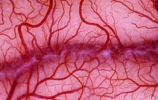 Микроангиопатия белого вещества головного мозга