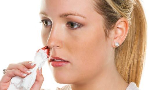 головная боль и носовое кровотечение у женщины