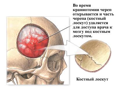 удаление фрагмента черепа