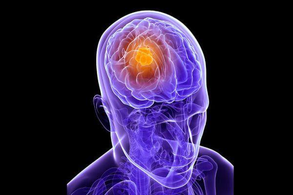 Продолжительность жизни при метастазах в головном мозге