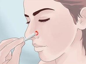 тампонирование носа