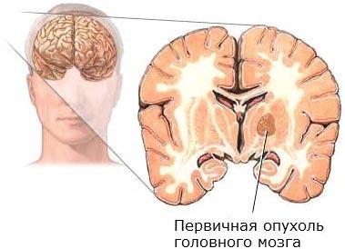 Почему трясет и болит голова thumbnail