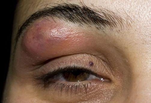 Прыщи на бровях: причины высыпаний и их лечение