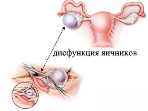 дисфункция яичников