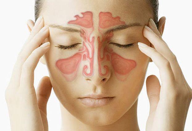 боль в области переносицы и лба у женщины