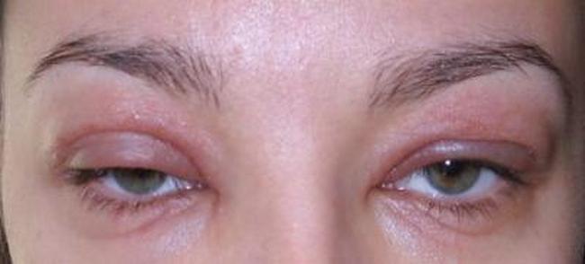 головная боль после ботокса и отек глаз