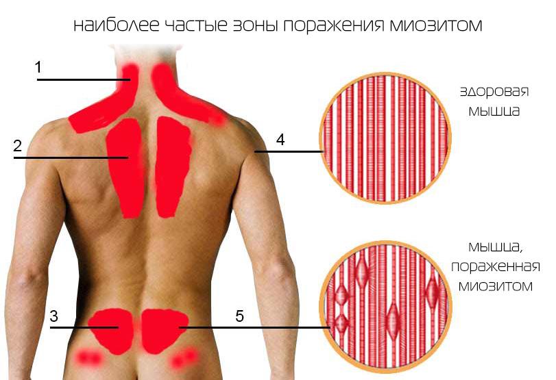Боль в области лопаток при повороте головы