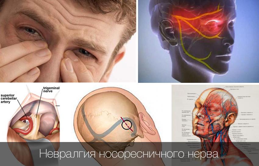 невралгия носоресничного нерва