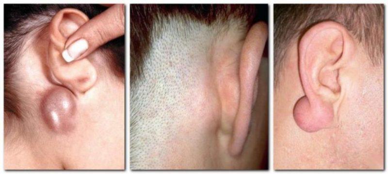 Лимфоузел за ухом болит: причины и лечение заушного лимфаденита