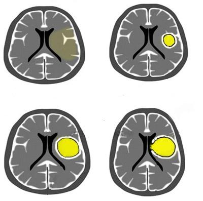 Абсцесс головного мозга классификация