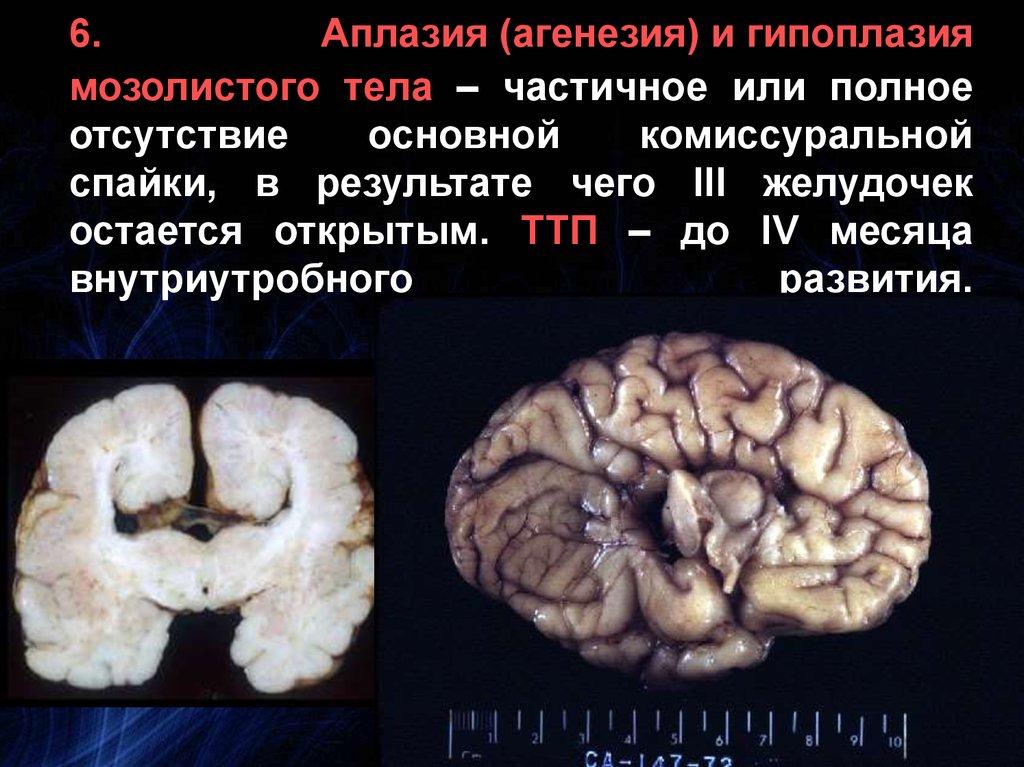 Гипоплазия мозолистого тела