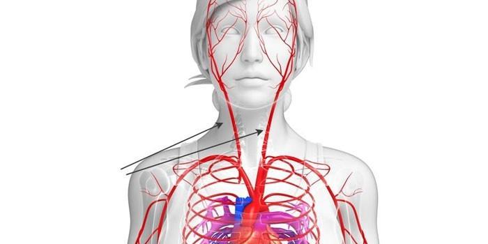 сонные артерии