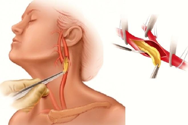 схема хирургического удаления тромба в сонной артерии