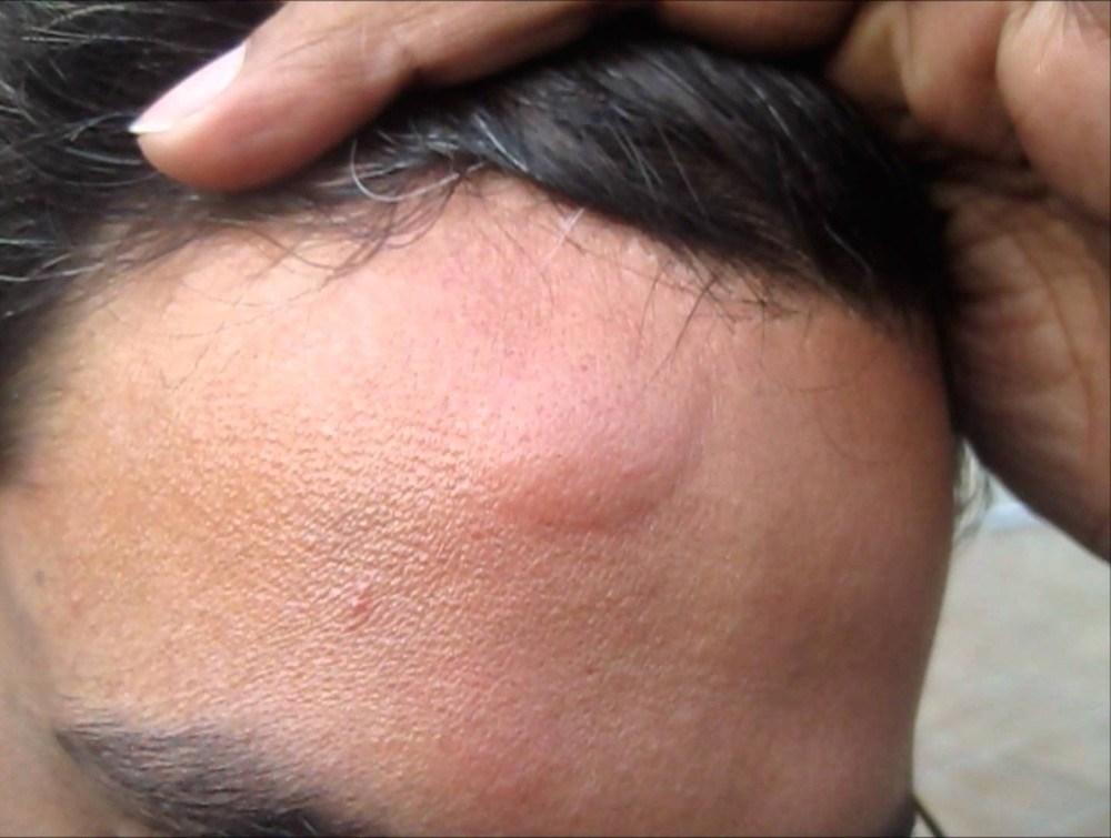 укус насекомого на лбу