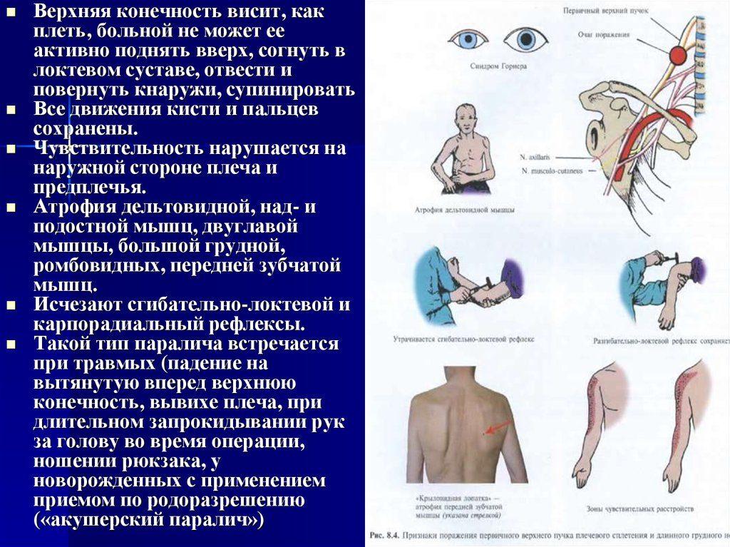 симптомы паралича дюшена эрба