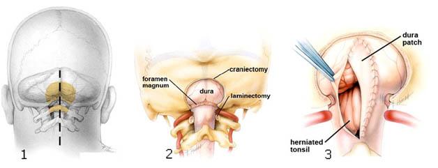 схема оперативного лечения аномалии арнольда киари