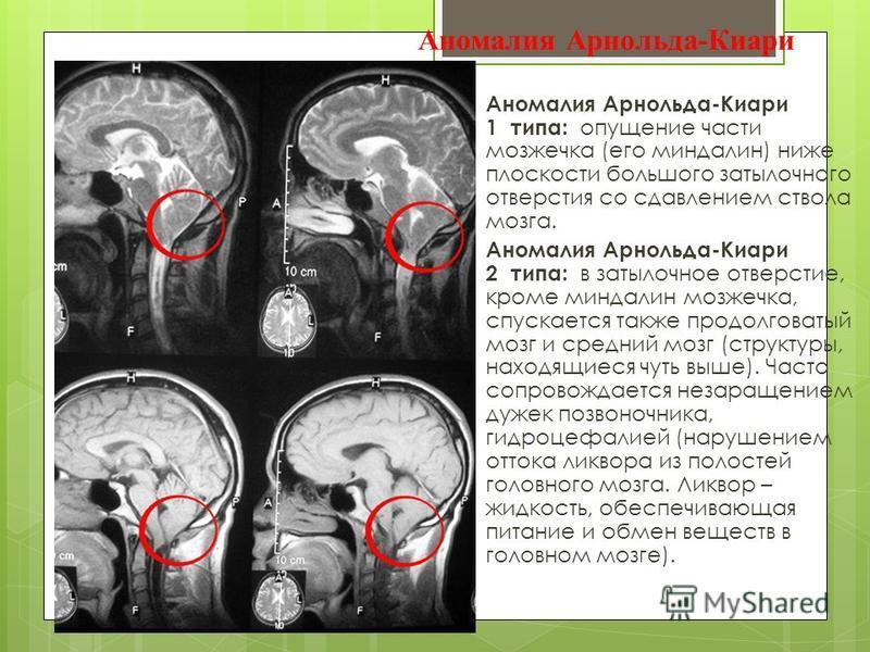 1 и 2 тип аномалии Арнольда Киари