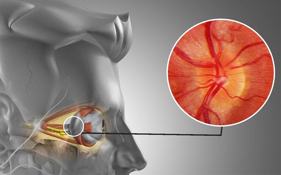 Классификация нерва болезни, неврит воспаление зрительного