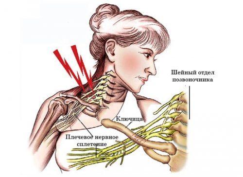 лечение и Симптомы неврита особенности плечевого воспаление нерва