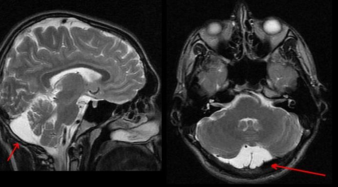 Болезнь мозга, ликворная