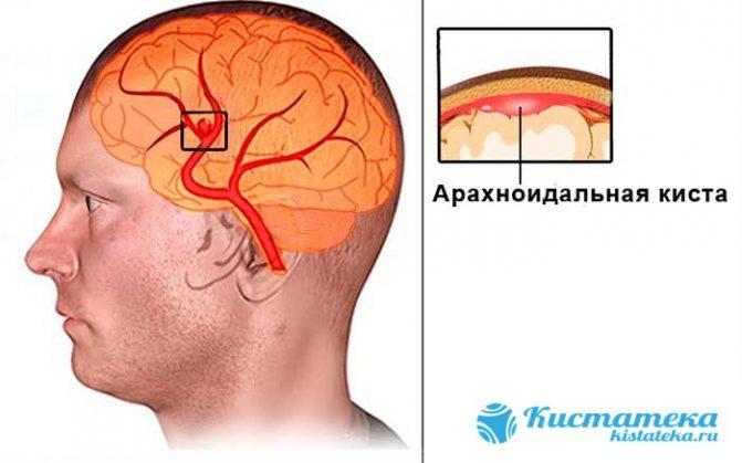 ликворная в голове