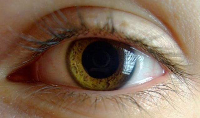 Глаз, расстройств нервной
