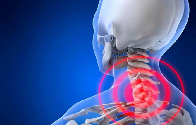 вертеброгенная, область боли, цервикалгия