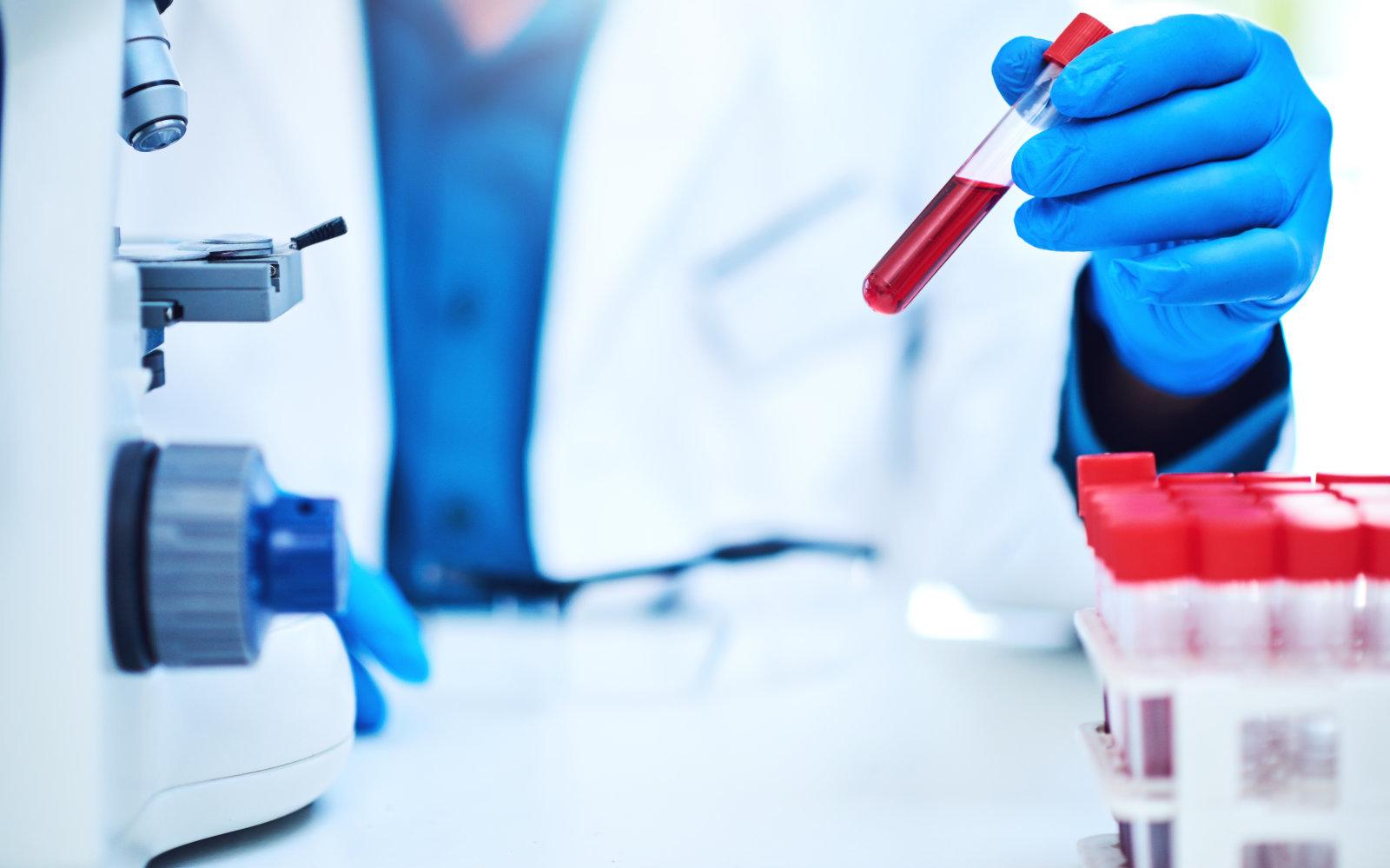 Анализ крови, нарушение координации