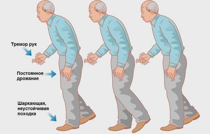 симптомы эссенциального тремора