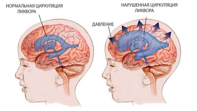 Симптомы ликворной