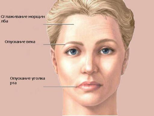 воспаление Женщина тройничного лица нерва