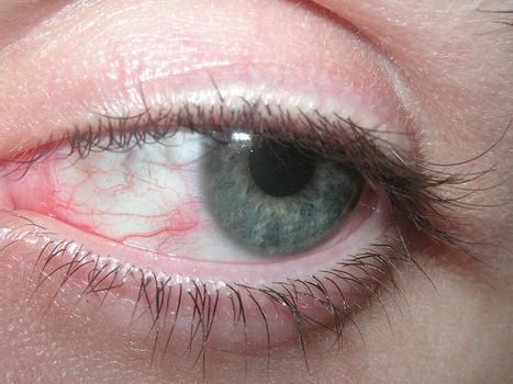 Симптоматика синдрома шегрена