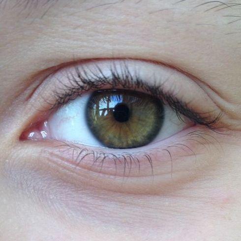Проблемы, Ретробульбарный с глазами неврит