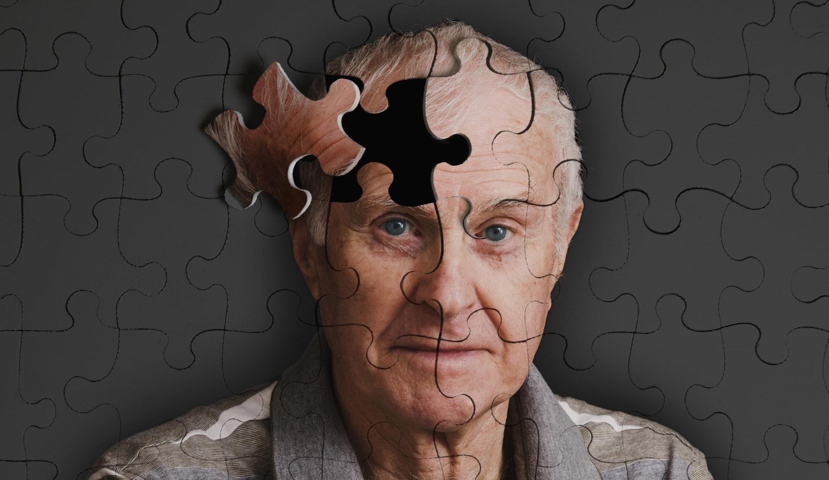 Повреждения системы моторного контроля, деменция с тельцами Леви