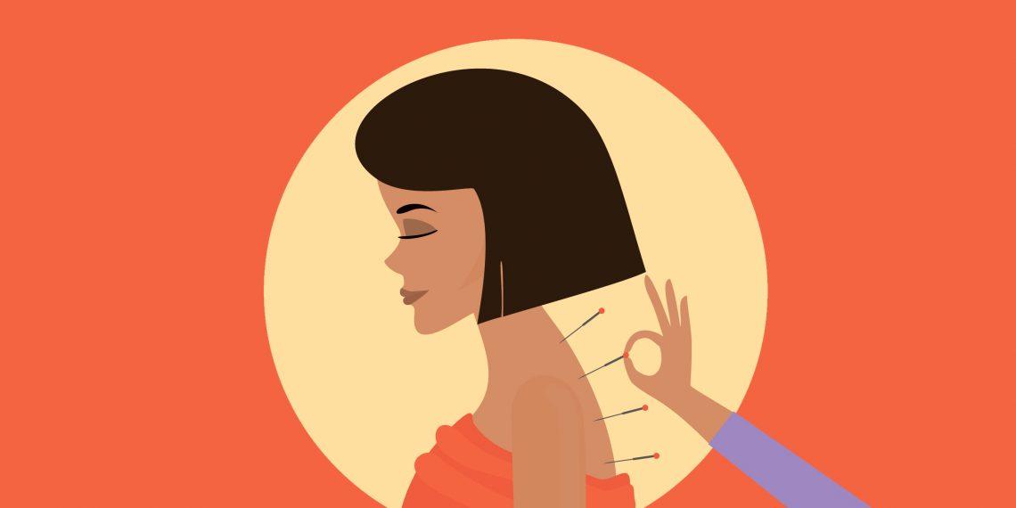 Акупунктура для лечения невралгии