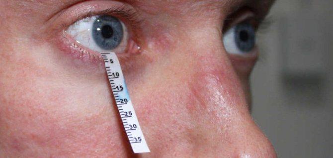 Классификация заболевания, синдром шегрена